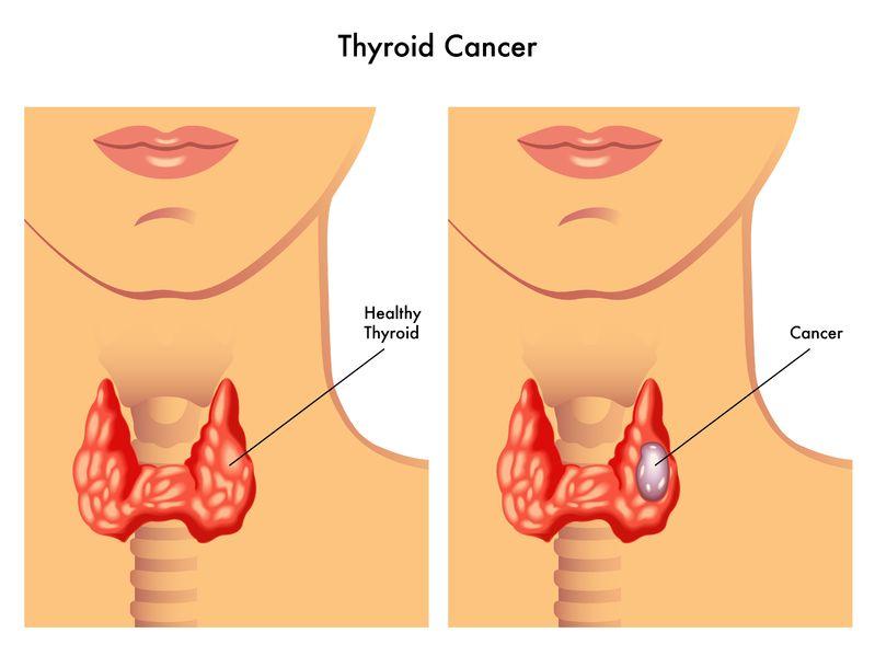 tireoidectomia fortaleza