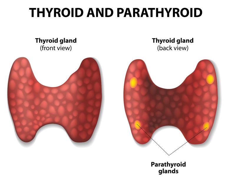 paratireoides cirurgia tireoide
