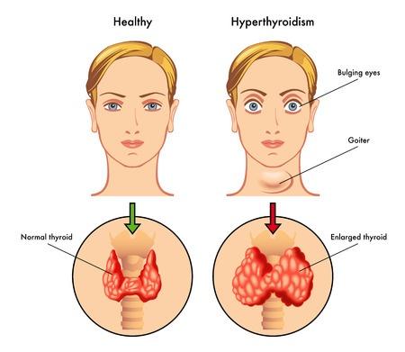 cirurgia da tireoide hipertireoidismo