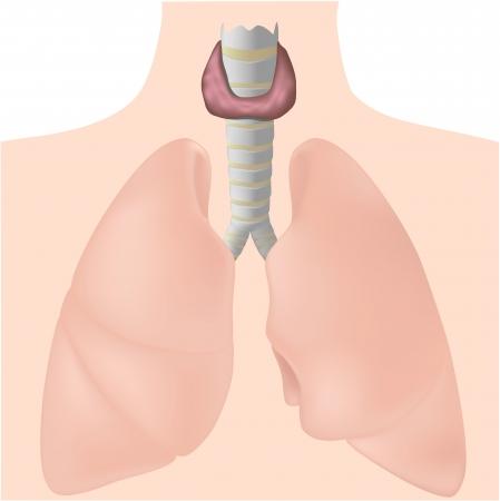 cirurgia da tireoide compressão traqueia