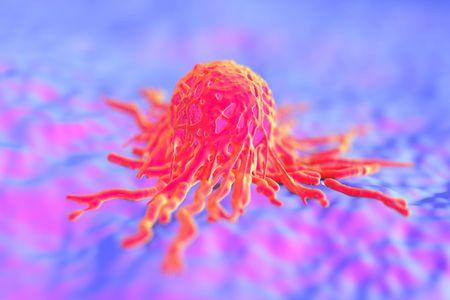 O câncer de tireoide pode ser agressivo.
