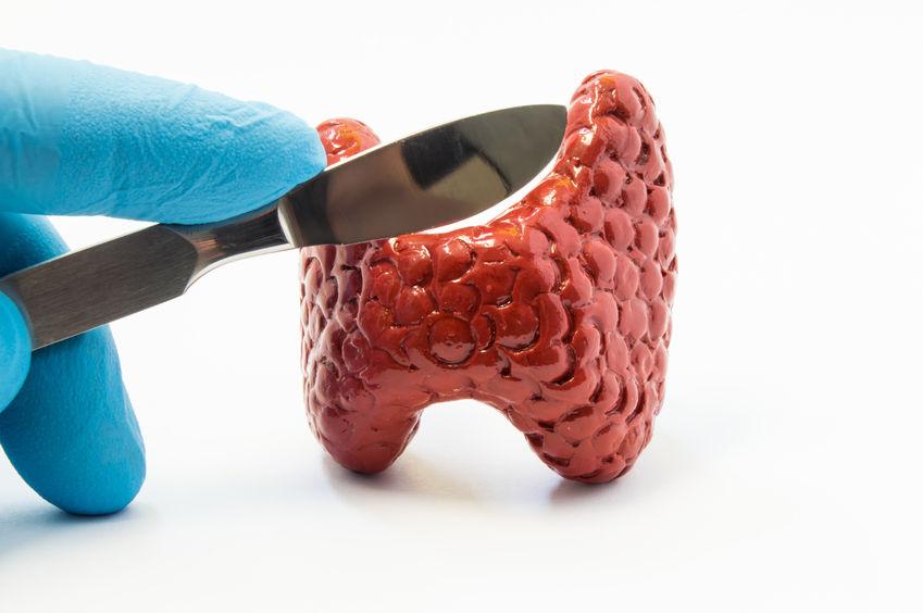 cirurgia tireoide