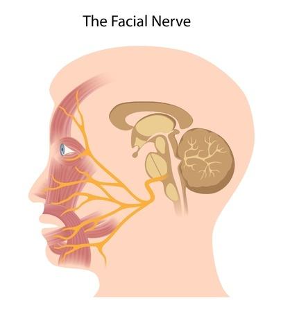 nervo facial parótida